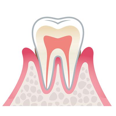 軽度歯周病